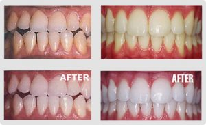 Before and after shots of teeth whitening