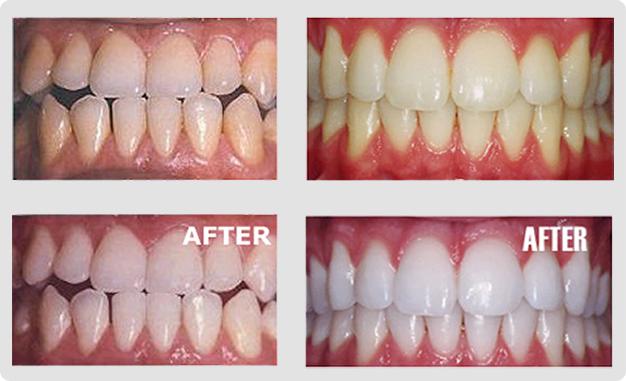 Teeth Whitening Ocm Dental
