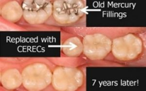 Teeth before and after CEREC