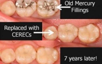 Single Visit CEREC Dentistry at O Connor Moore Dental Practice