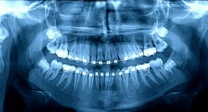 Digital Radiography of orthodontics