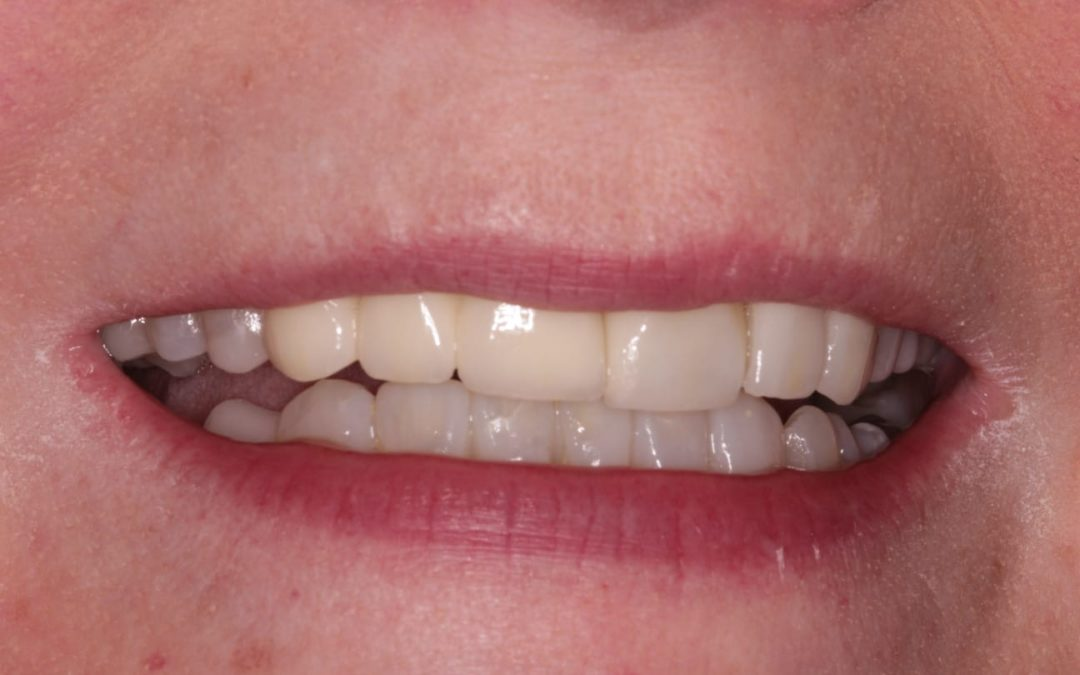 Patient of OCM Dental showing teeth after treatment